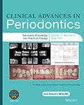 Clinical Advances in Periodontics