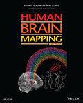 Human Brain Mapping