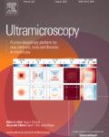 Ultramicroscopy