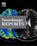 Neuroimage: Reports